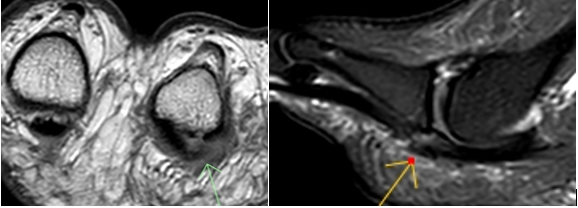 Interesting Case 14 - Plantar Plate Tear - Imaging @ Olympic Park